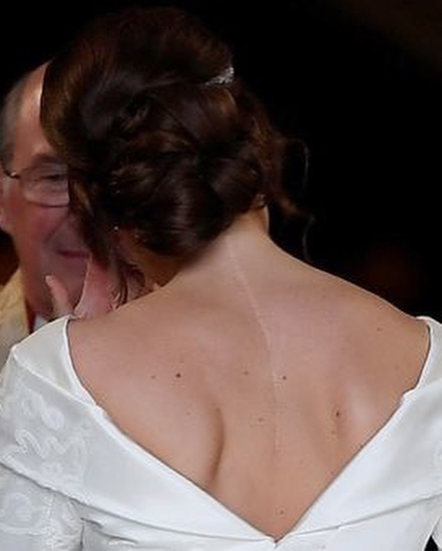 Eugenie wedding back